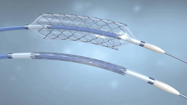 Stent and catheter for implantation and supporting blood circulation into blood vessels with an empty and filled balloon - 3d illustration stock photo