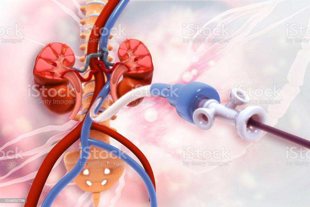 Angioplastia stent. Enfermedad arterial periférica - foto de stock