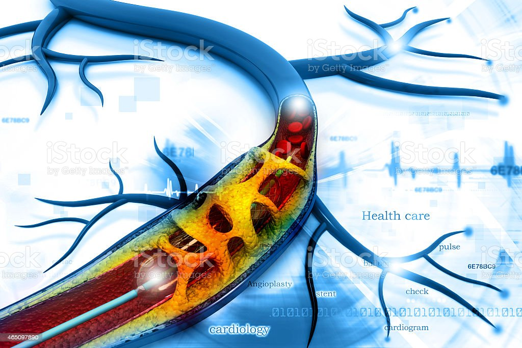 Stent angioplasty stock photo