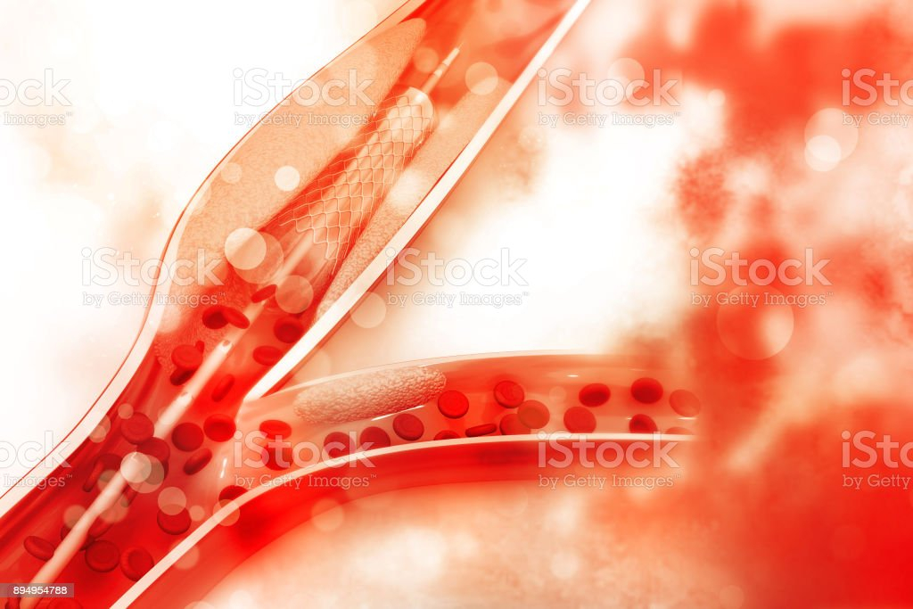 Stent angioplasty procedure with placing a balloon stock photo