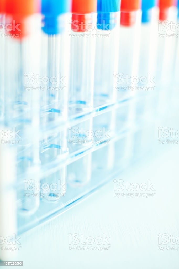 Sterile laboratory test tubes with colorful stoppers in test tube rack
