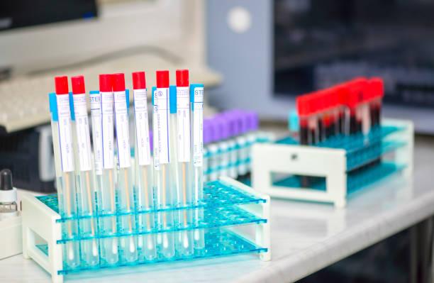 sterile test swap tubes for taking sample of throat diseases - campione scientifico foto e immagini stock