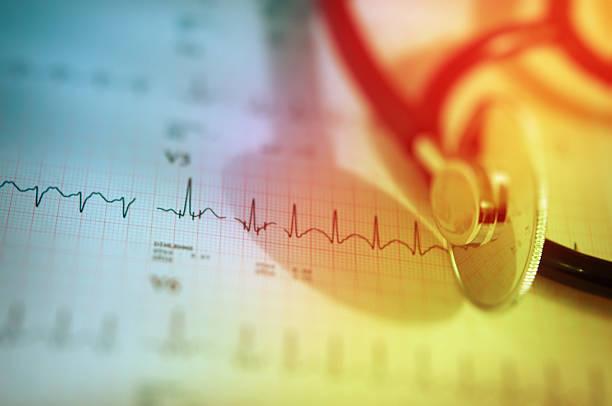 Estetoscópio e organogramas com gráfico de ecg de coração - foto de acervo