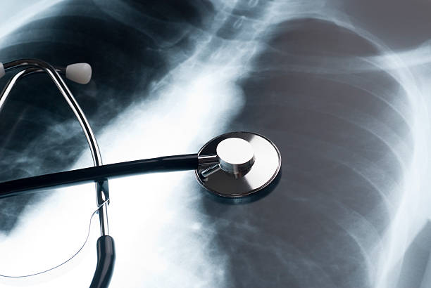 Stethoscope and Chest XRay Physician stethoscope on an XRAY of a human chest lung stock pictures, royalty-free photos & images