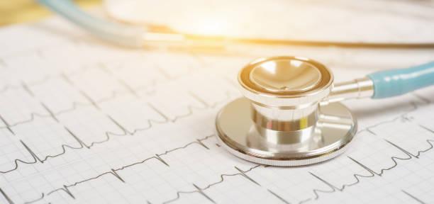 Stethoskop Kopf und Herz EKG auf Zwischenablage Pad. Cardio Entspannungstechnik Hilfe, Arzt machen, physischen Herz, Puls schlagen Maßnahme Dokument, Arrhythmie Herzschrittmacher medizinisches medizinisches Konzept – Foto