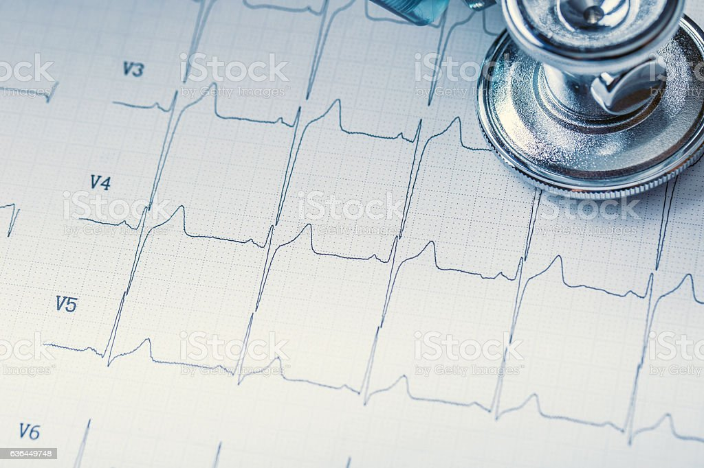 Stethoscope on a heart monitor printout. - Photo