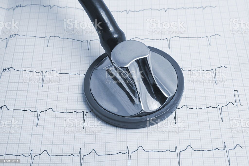 Stethoscope on ECG print in blue stock photo