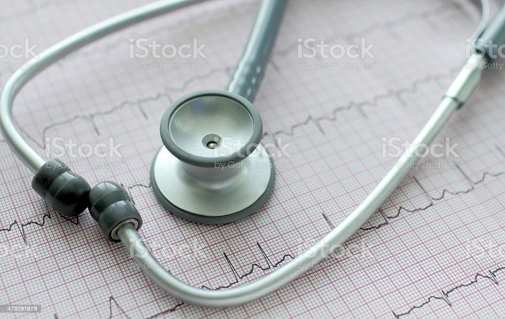 stethoscope on the ECG. stethoscope on the ECG. Symbolic close-up photo 2015 Stock Photo