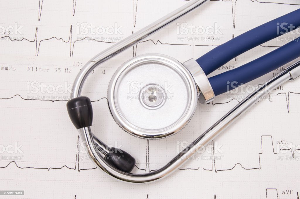 Stethoscope or phonendoscope and with chrome binaural pieces and blue flexible tubing lies on the paper electrocardiogram (EKG or ECG) view from above stock photo