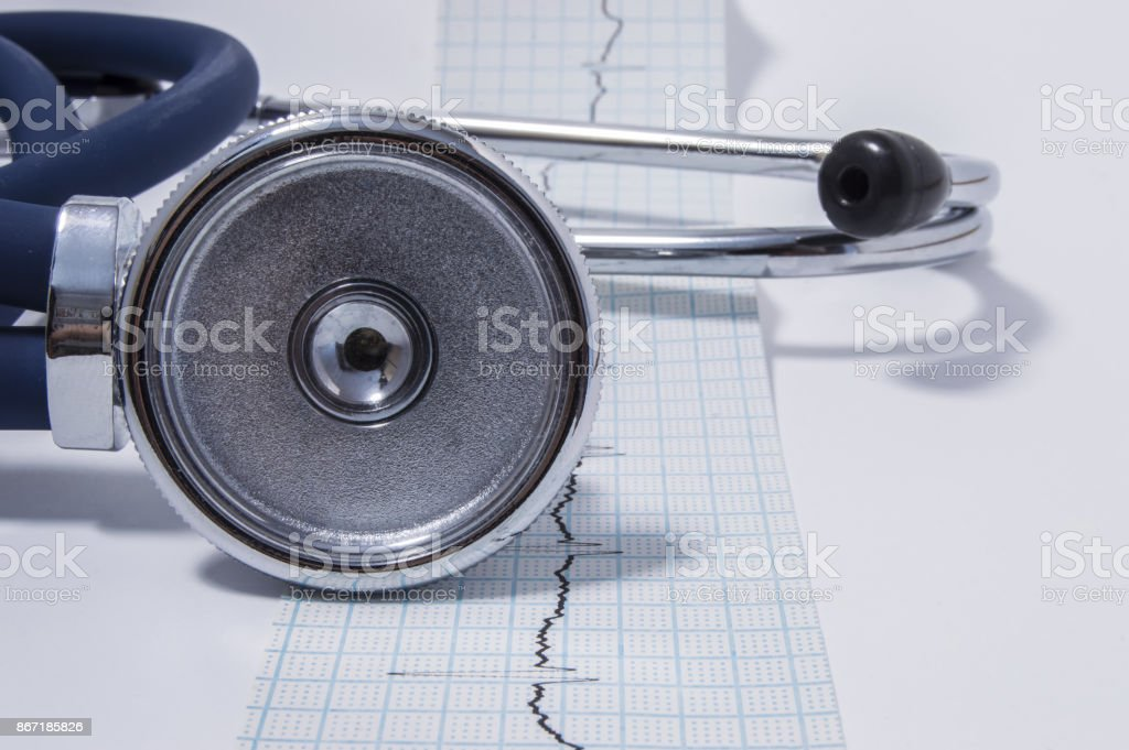 Stethoscope or phonendoscope is on the tape with the recorded electrocardiogram (EKG or ECG)  front view. The idea for the cardiological or general medical examination or checkup stock photo