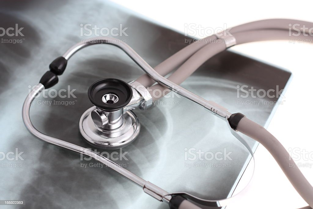 Stethoscope resting on a chest X-ray stock photo