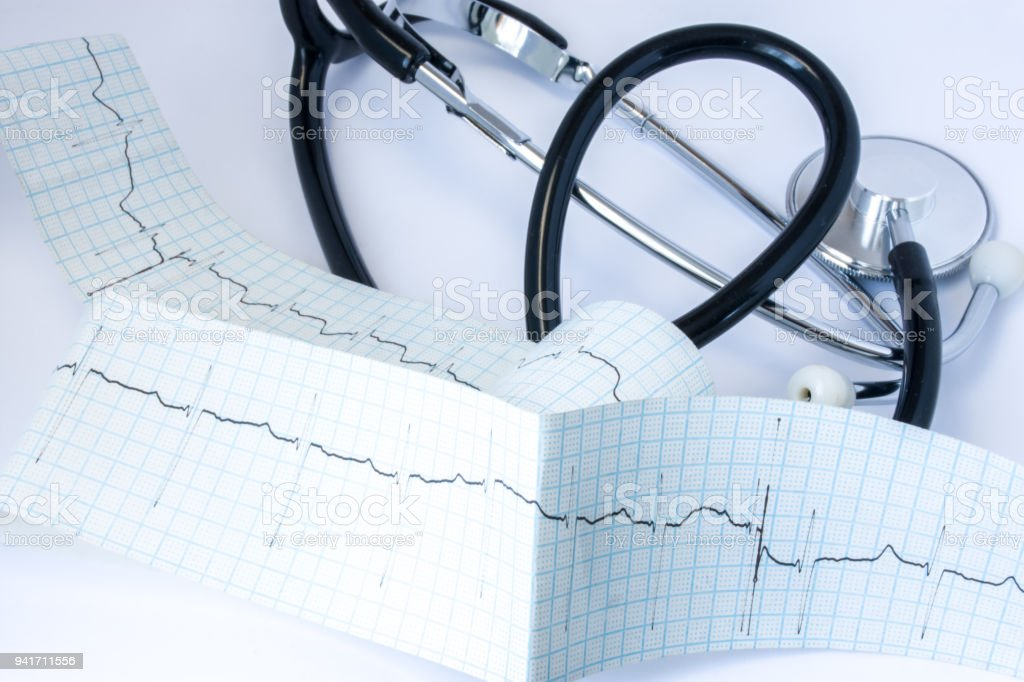 Stethoscope with black air duct tube located near the tape of electrocardiogram (ECG) with one line of pulse trace on the table in cardiologist's or general practitioner office close up front view stock photo