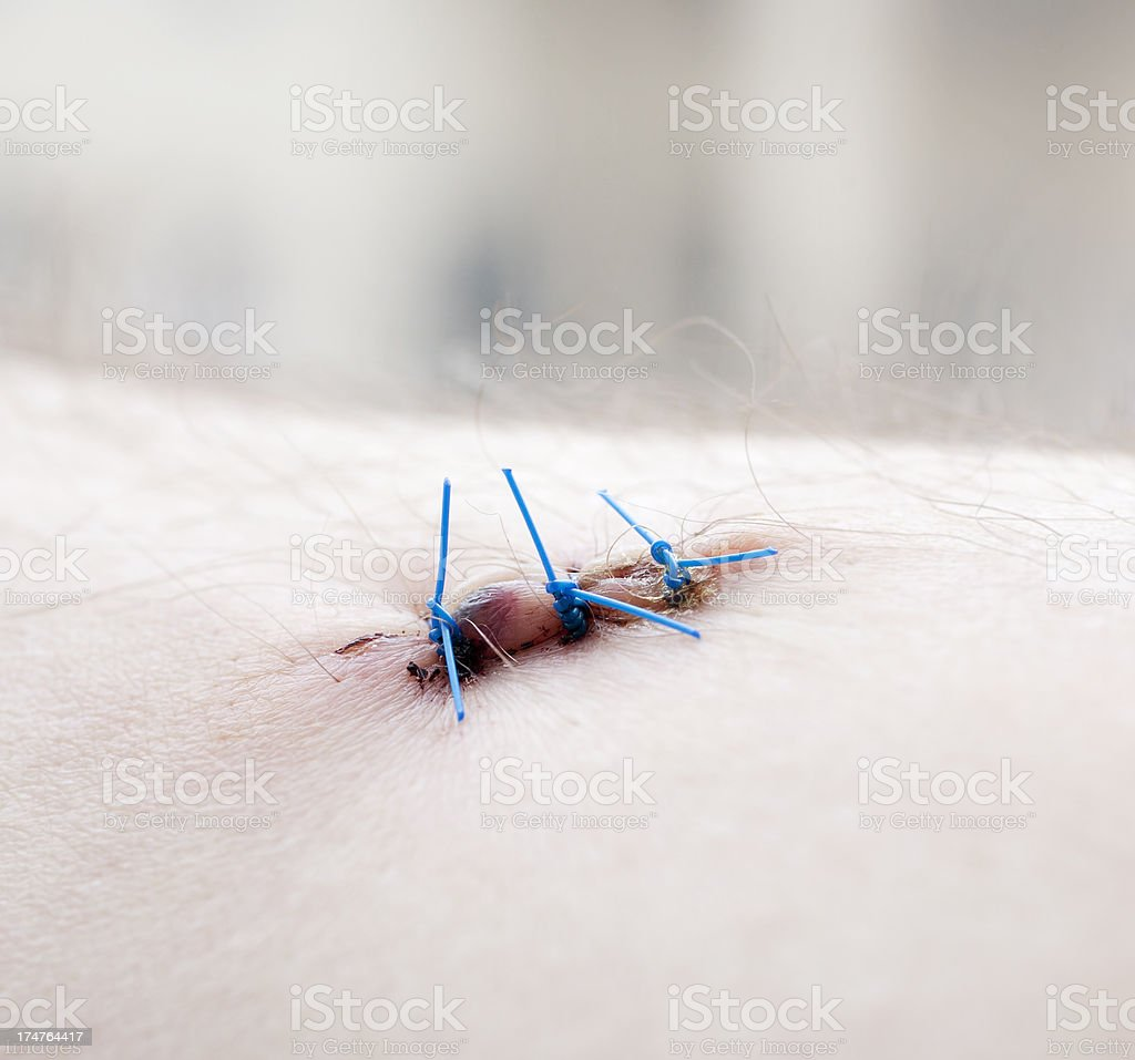Stiches stock photo