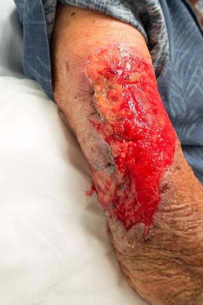 Stitched and degloved arm of a senior man stock photo