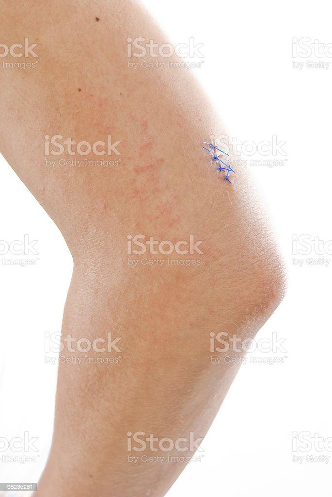 stitched up injury royalty-free stock photo