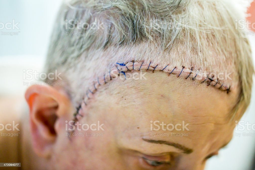 Stitches And Incison After Brain Surgery Stock Photo