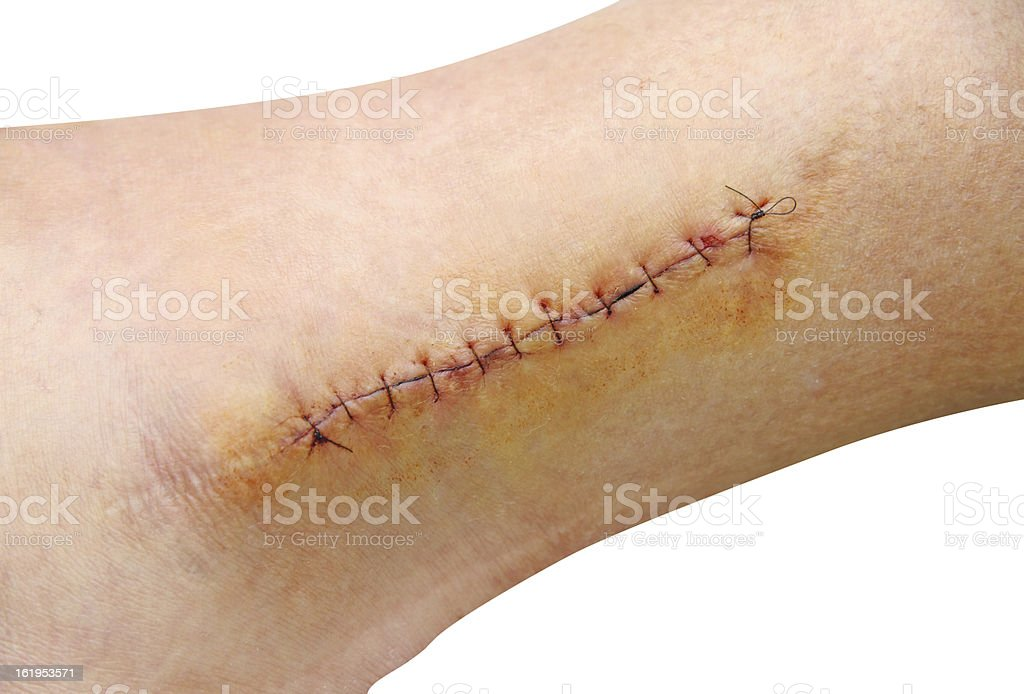 Stitches in the leg (ankle) stock photo
