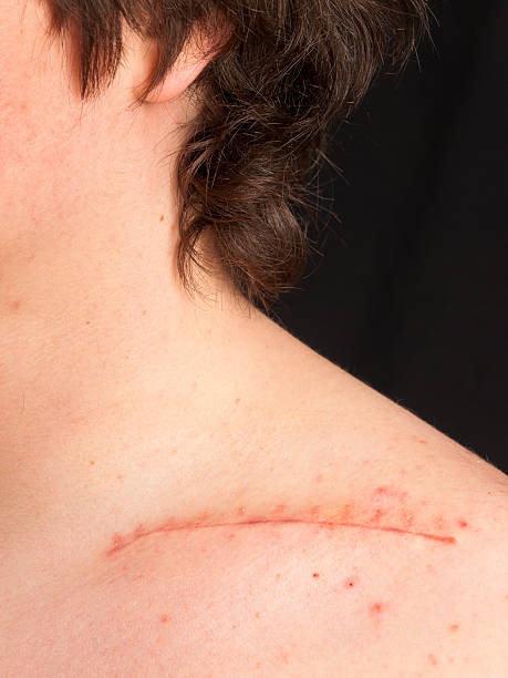 stitches on collar bone - shoulder surgery stock photos and pictures