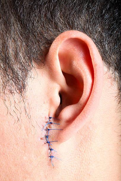 Stitches on man ear stock photo