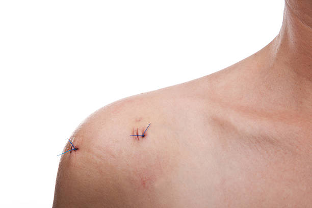 stitches on shoulder after operation - shoulder surgery stock photos and pictures