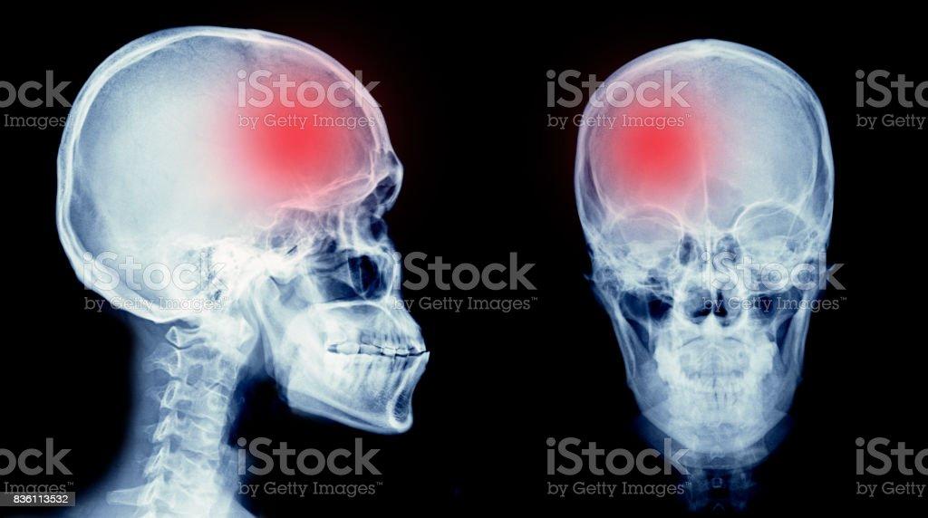 stoke brain stock photo