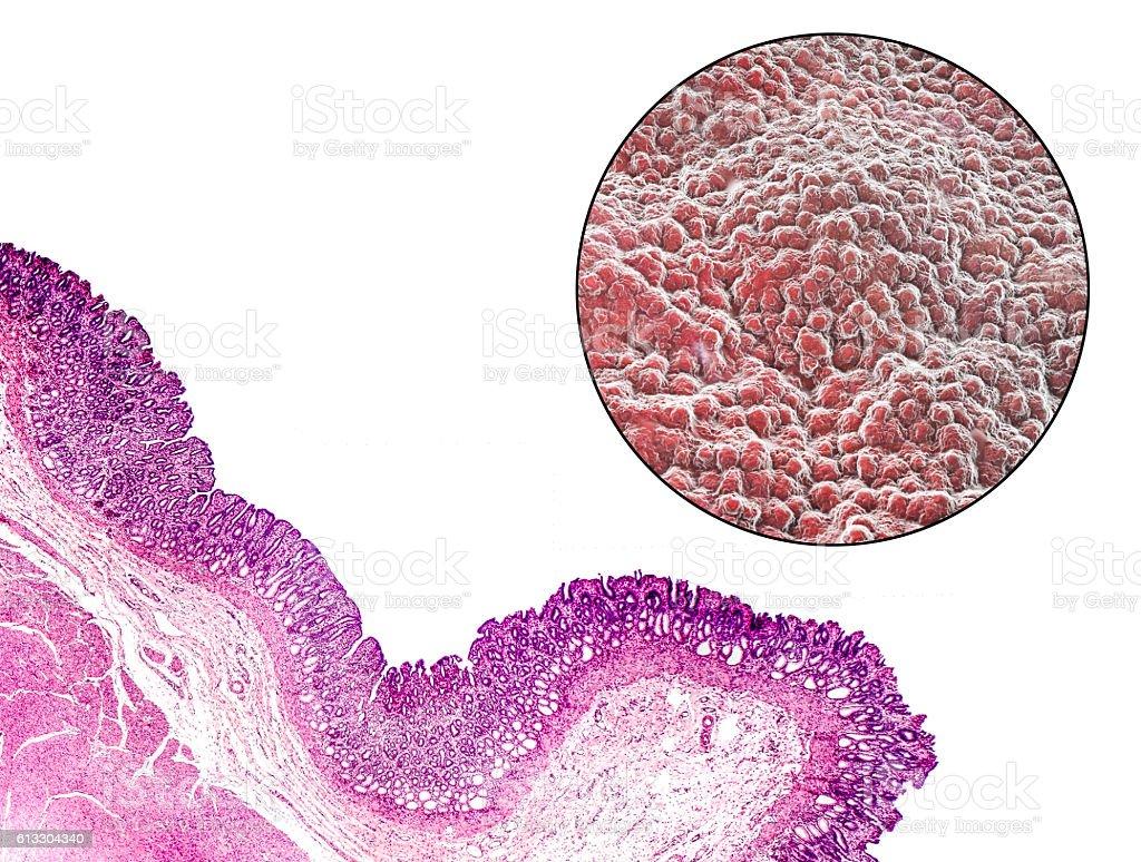 Stomach mucosa, micrograph and illustration stock photo