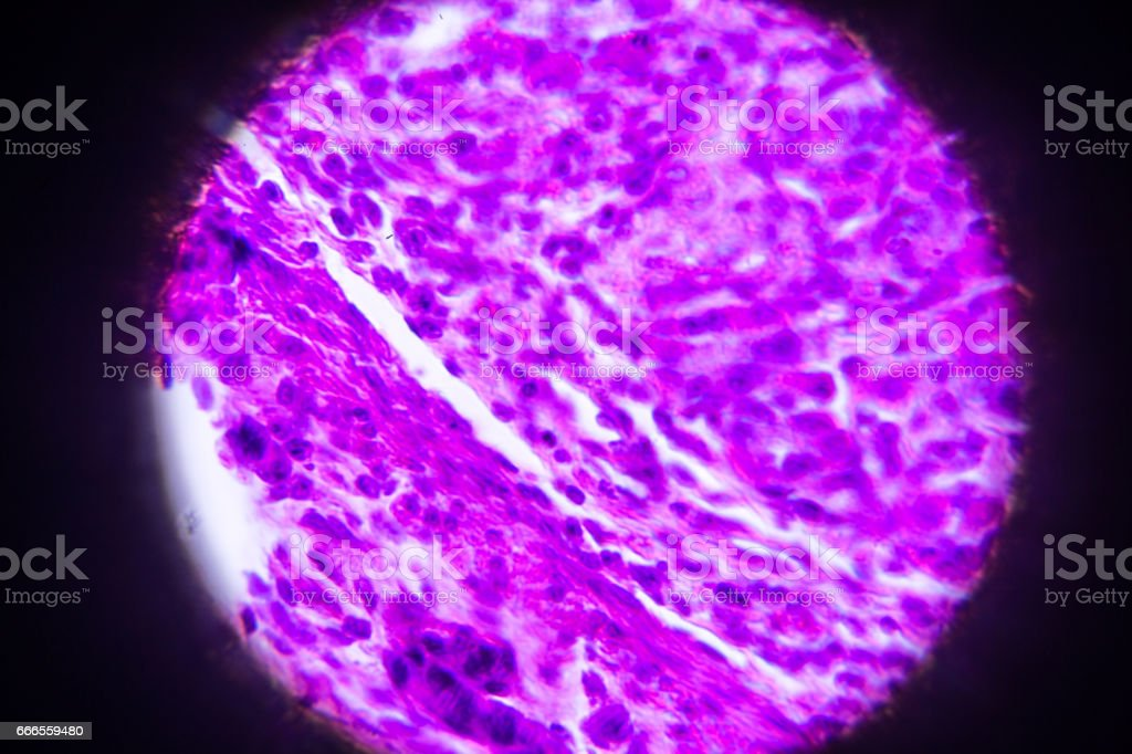 Fotografía de Sección Del Estómago En Microscopio y más banco de ...