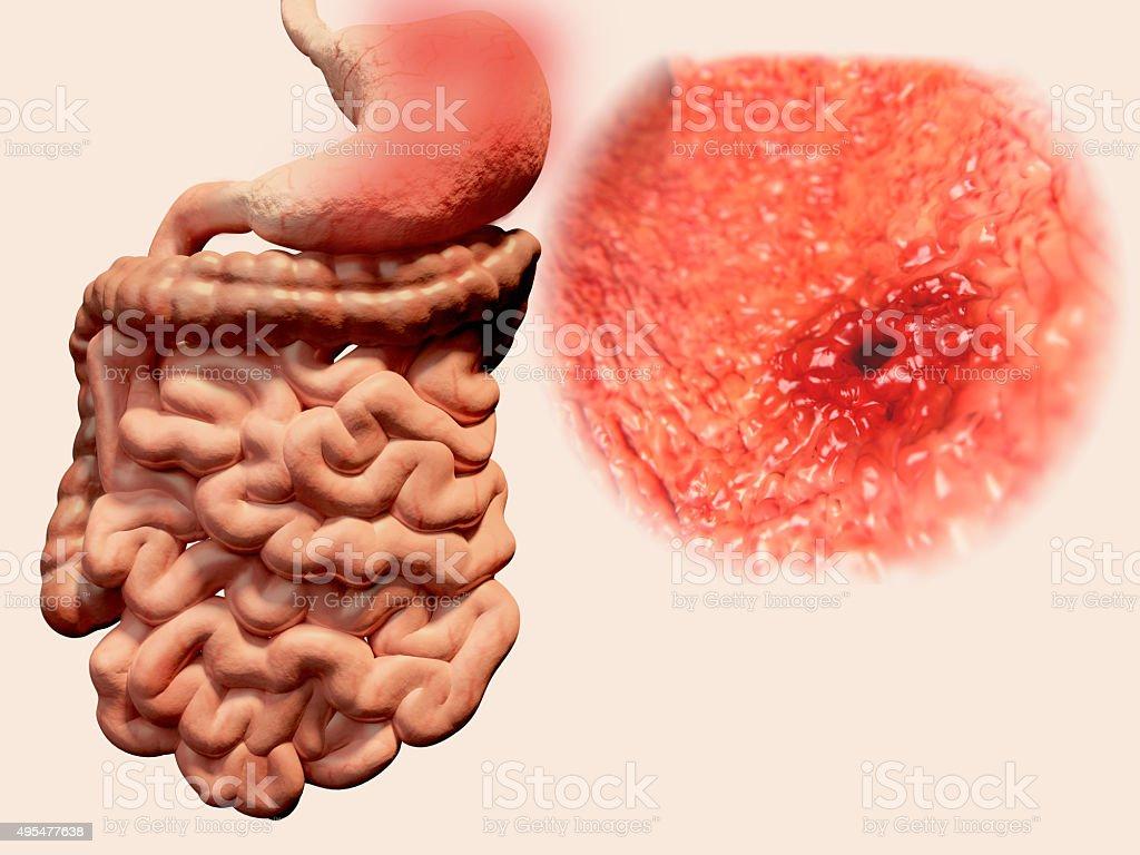 Stomach ulcer stock photo