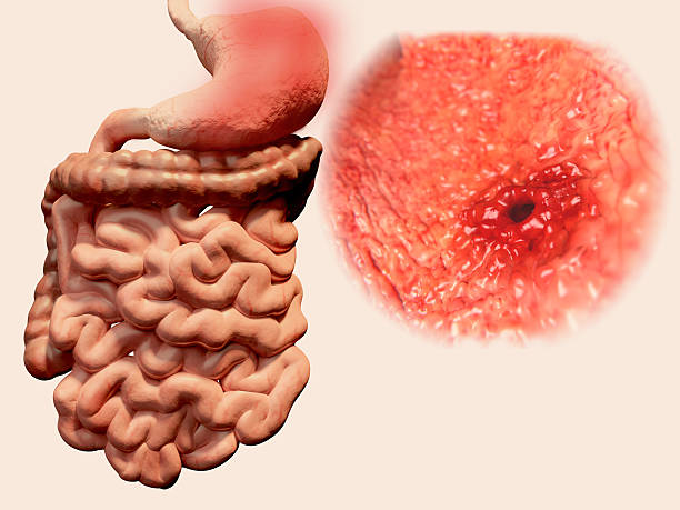 Stomach ulcer stock photo