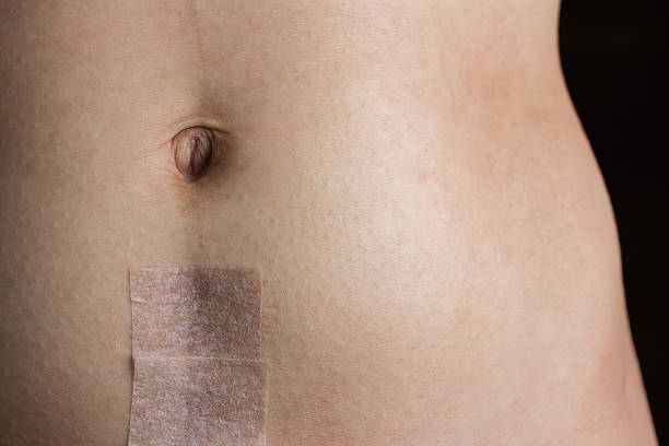 stomach with recovering cesarean section scar - c section stock photos and pictures