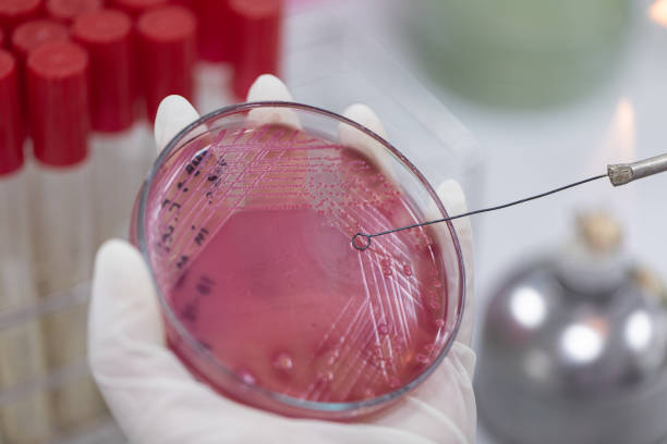 Streak plate for Bacteria culture or identify Bacteria research in labmicrology. stock photo