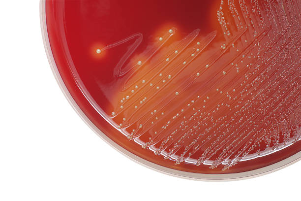 Streptococcus bacterial colonies with beta hemolytic on blood ag stock photo