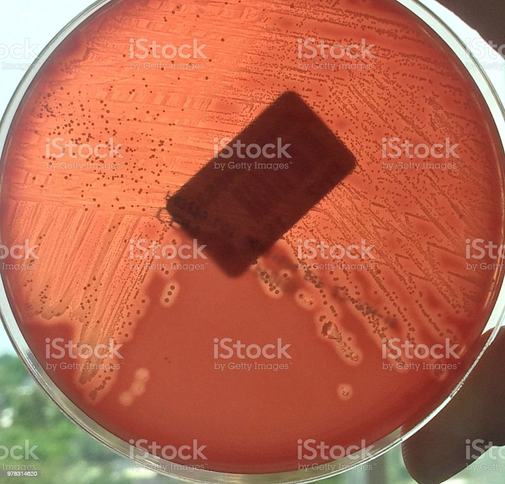Streptococcus pyogenes, a potentially deadly bacterium stock photo