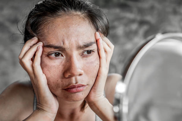 stress Asian woman having skin problem looking at mirror and worry about dark spot, freckle stress Asian woman having skin problem looking at mirror and worry about dark spot, freckle from uv light on face dark spots face stock pictures, royalty-free photos & images