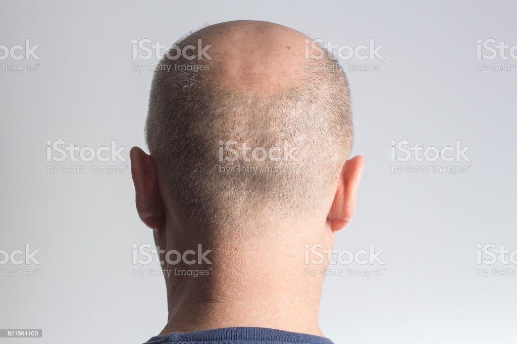 stressed Sad bald man on white background,hair loss baldness stock photo