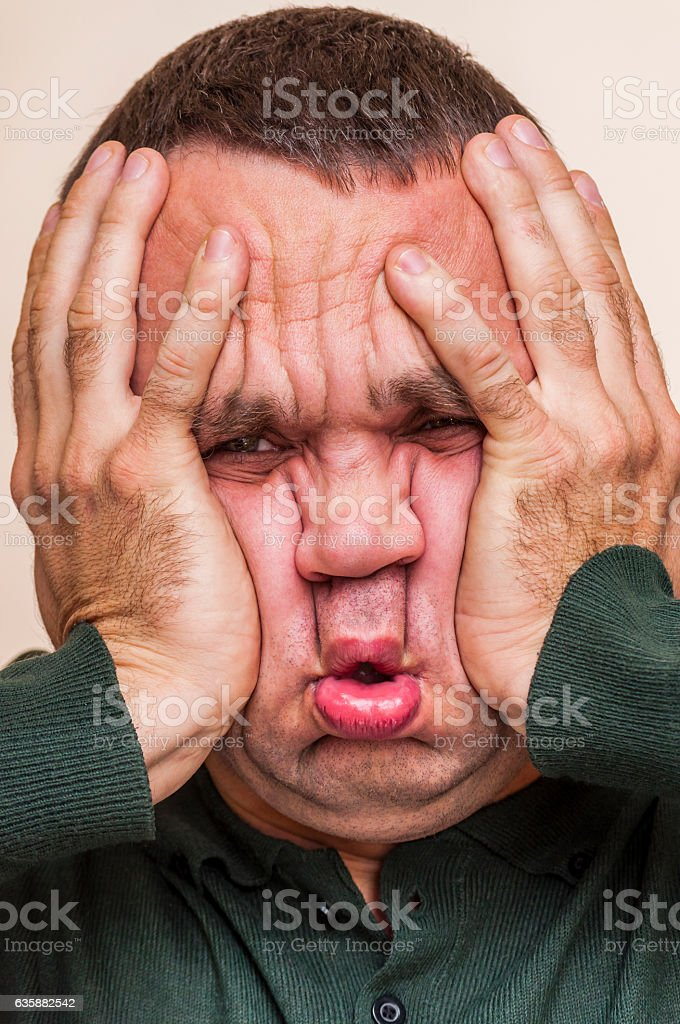 Stressed, shocked man squeezing his depressed face with palms. stock photo