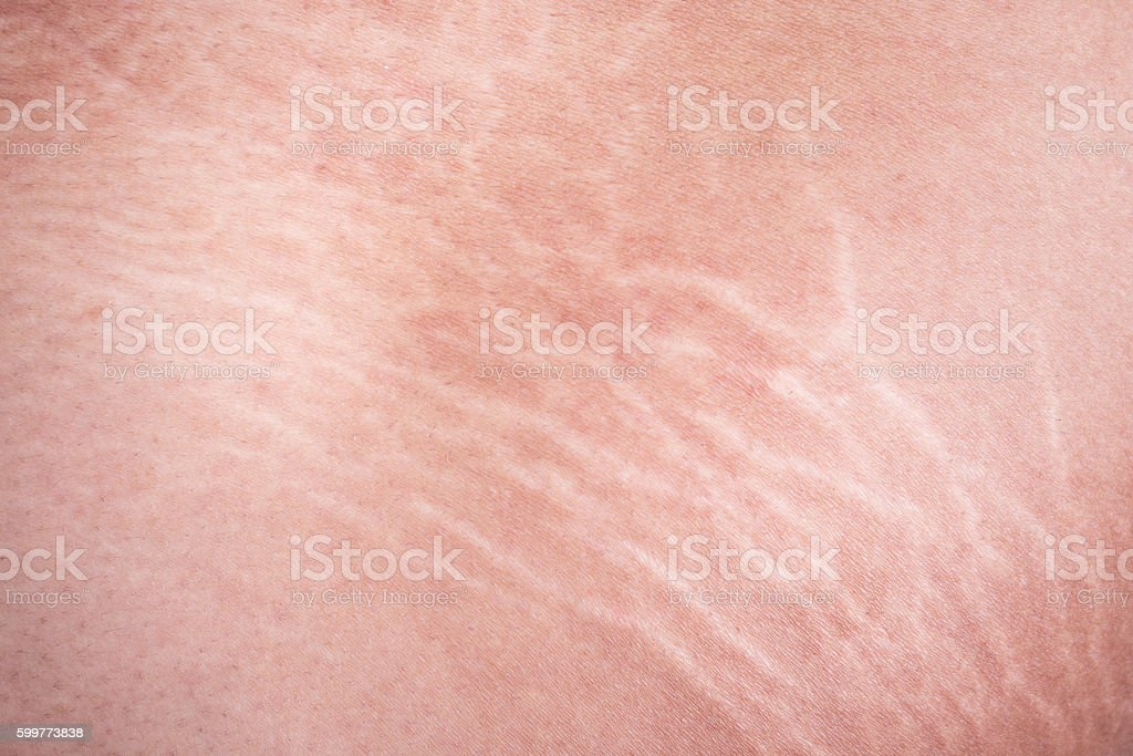 Stretch marks of skin on the thigh stock photo
