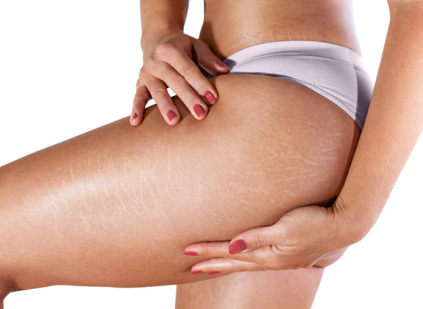 Stretch marks on woman's legs stock photo