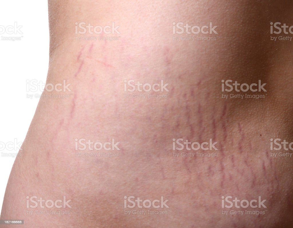 Stretch Marks royalty-free stock photo