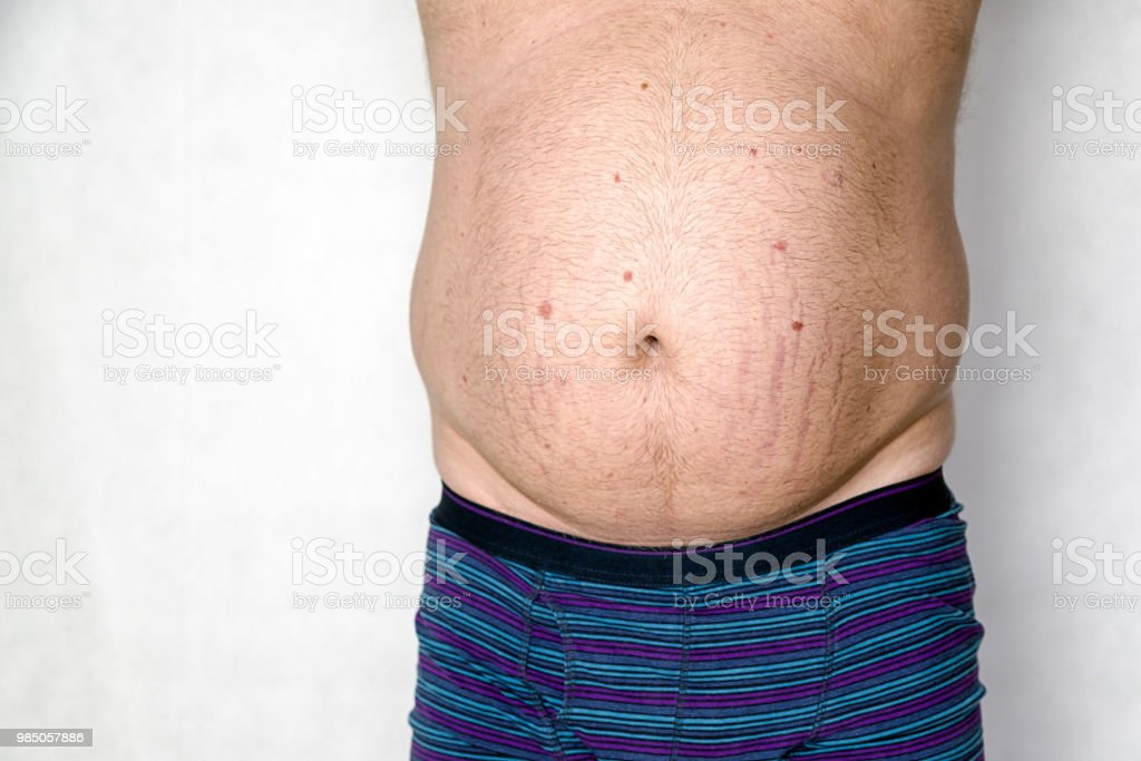 Striae on fat belly stock photo