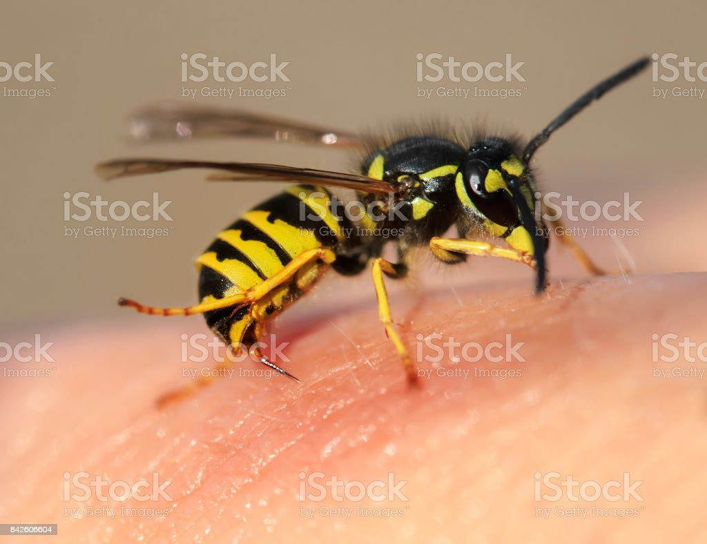striped angry wasp stuck a sharp thorn in the human skin stock photo