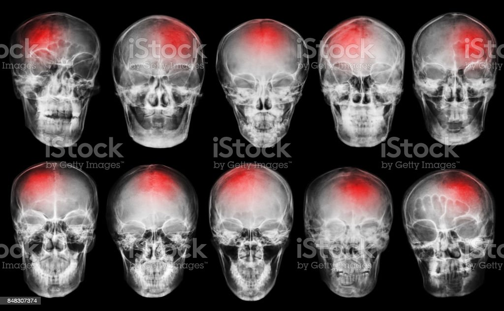 Stroke . Cerebrovascular accident . Set of film x-ray skull .