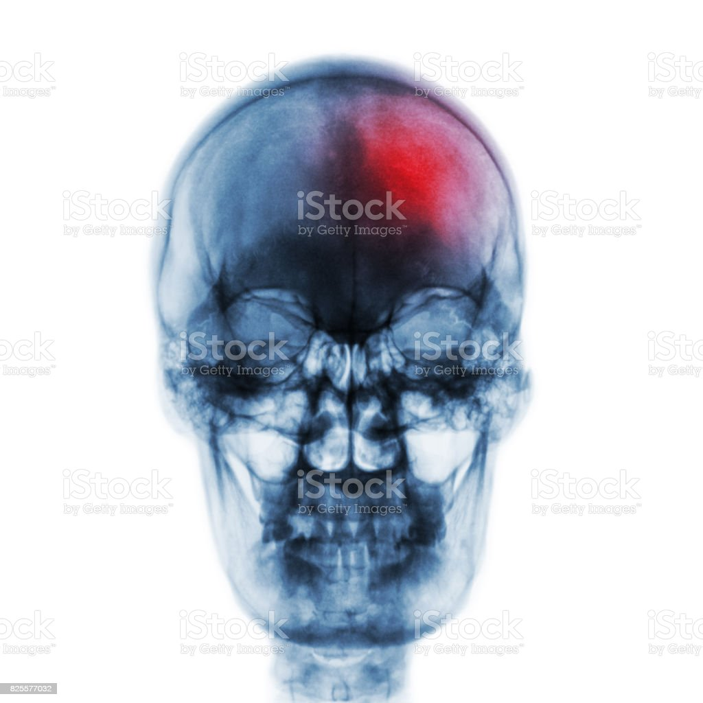 Stroke ( Cerebrovascular accident ) . Film x-ray skull of human with red area . Front view stock photo