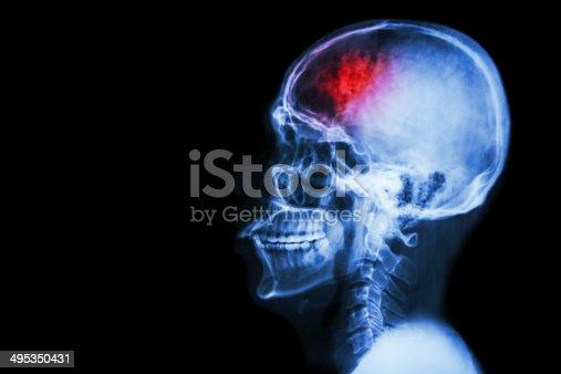 istock Stroke (cerebrovascular accident) 495350431