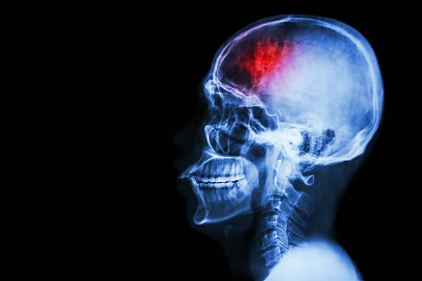 stroke (cerebrovascular accident) - head stock photos and pictures