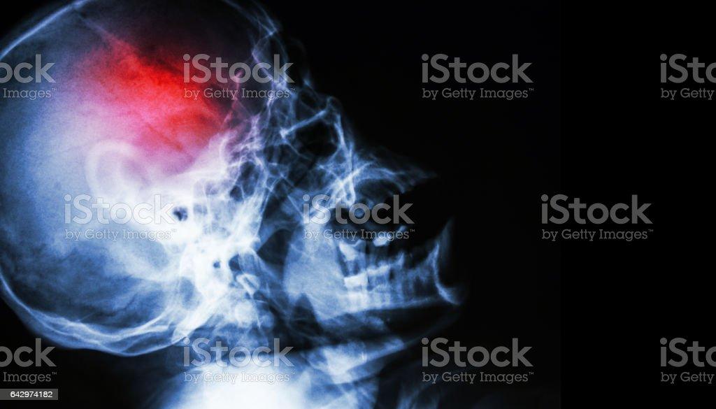 Stroke . stock photo