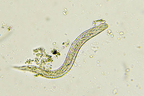 Strongyloides stercoralis (threadworm) Strongyloides stercoralis (threadworm) in stool, analyze by microscope nematode worm stock pictures, royalty-free photos & images