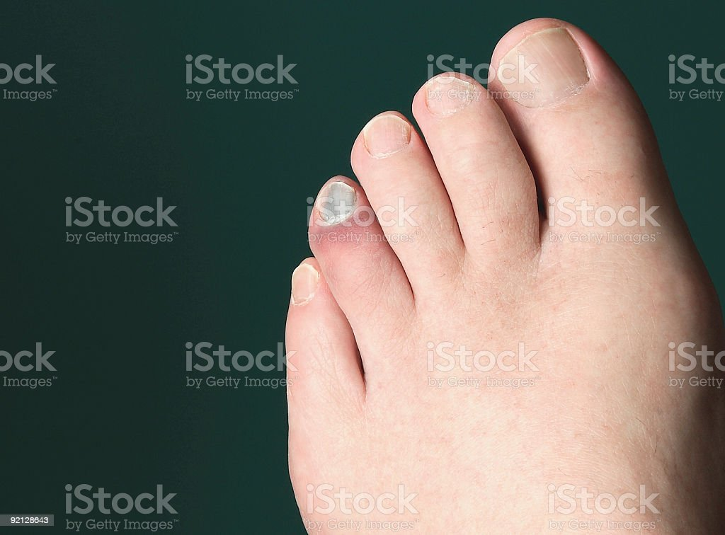 OUCH!  I stubbed my toe! stock photo