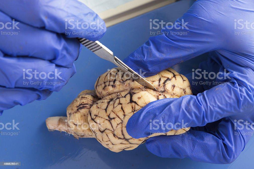 Student Mit Einer Skalpell Auf Dissect Eine Kuh Gehirn Stock ...