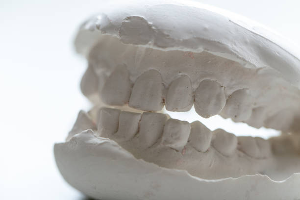 Study cast of Diagnostic cast and dental gypsum models in dental laboratory. stock photo